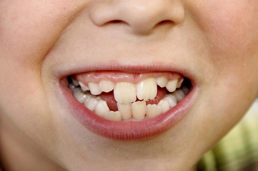 Wann zum Kieferorthopäden?   Kostenfalle Zahn