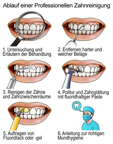 Professionelle Zahnreinigung - was ist das? | Kostenfalle Zahn