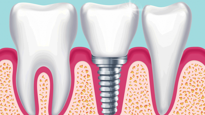 Implantate Können Auch Risiken Und Nebenwirkungen Haben