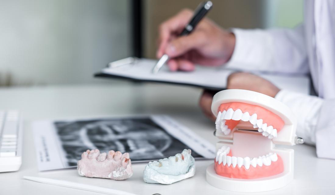 Zahnersatz Implantate Erfahrungsberichte